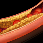Anti-platelet drugs- Clopidogrel