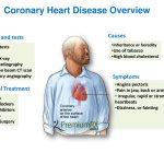 Coronary heart disease overview