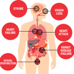 High blood pressure overview